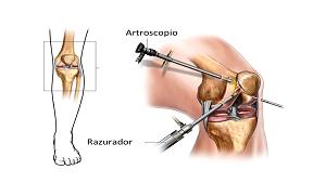 Cirugía rodilla y hombro